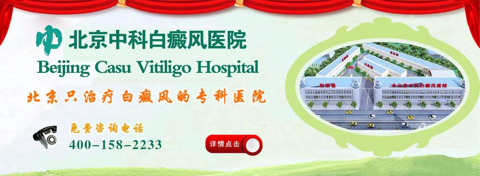 北京白癜风权威医院