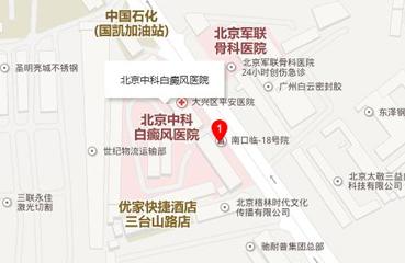 北京中科白癜风医院来院路线
